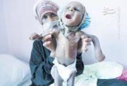 وبا یک میلیون نفر را در ۳ شهر یمن تهدید میکند