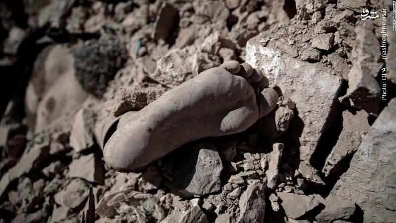 فاجعه انسانی در صنعا در پی بمبارانهای پیاپی از سوی <a data-ail=