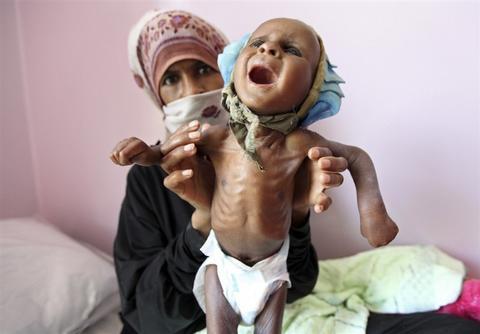 روزانه ۱۳۰ کودک یمنی به خاطر گرسنگی میمیرند