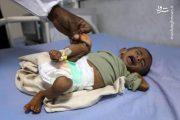 شیوع وبا در یمن «غیرقابل کنترل» میشود