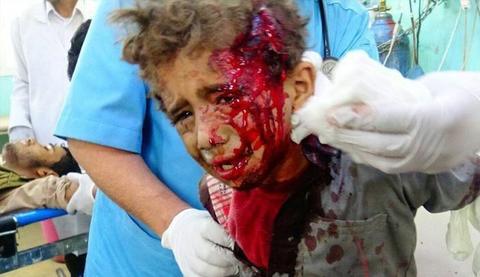 جنایت دیگر از ائتلاف سعودی در غرب یمن/ ۲۷ کودک و ۴ زن شهید شدند